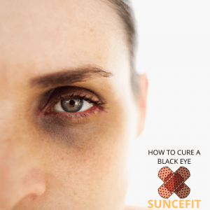 black eye cure: how to get rid of a black eye fast